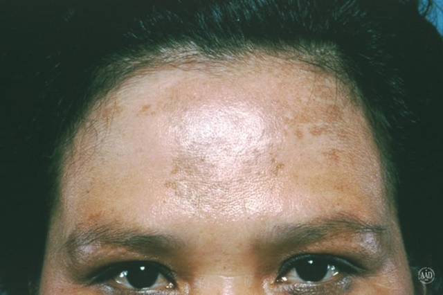 SKIN SPOTS: The difference between age spots, moles, melasma, and freckles